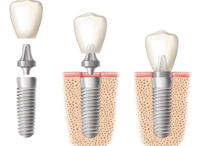 Che cos'è la chirurgia guidata in implantologia