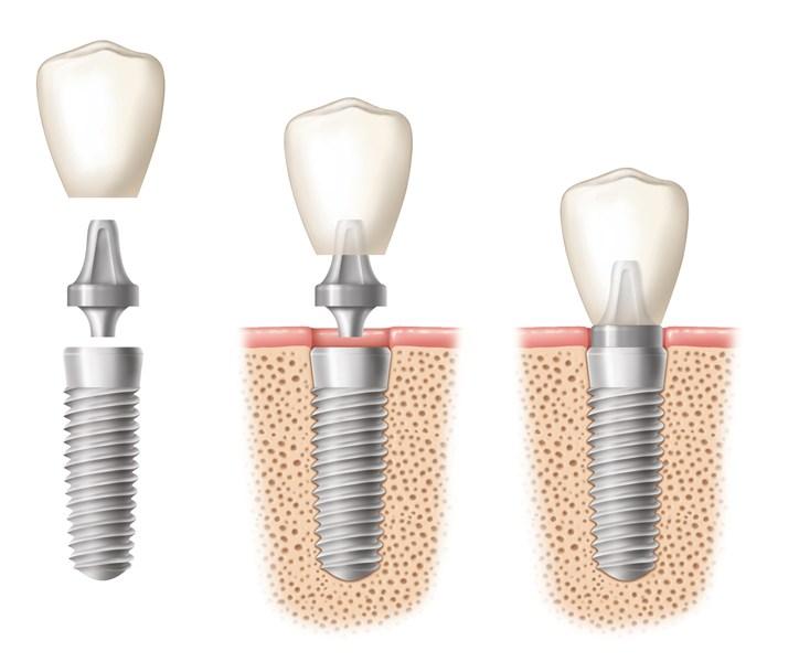 chirurgia guidata dentale